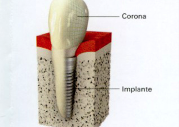 implantes-dentales-ulldent