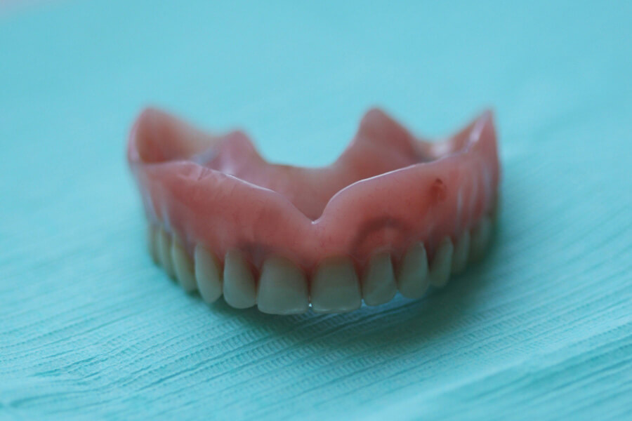 Implantes dentales Badalona