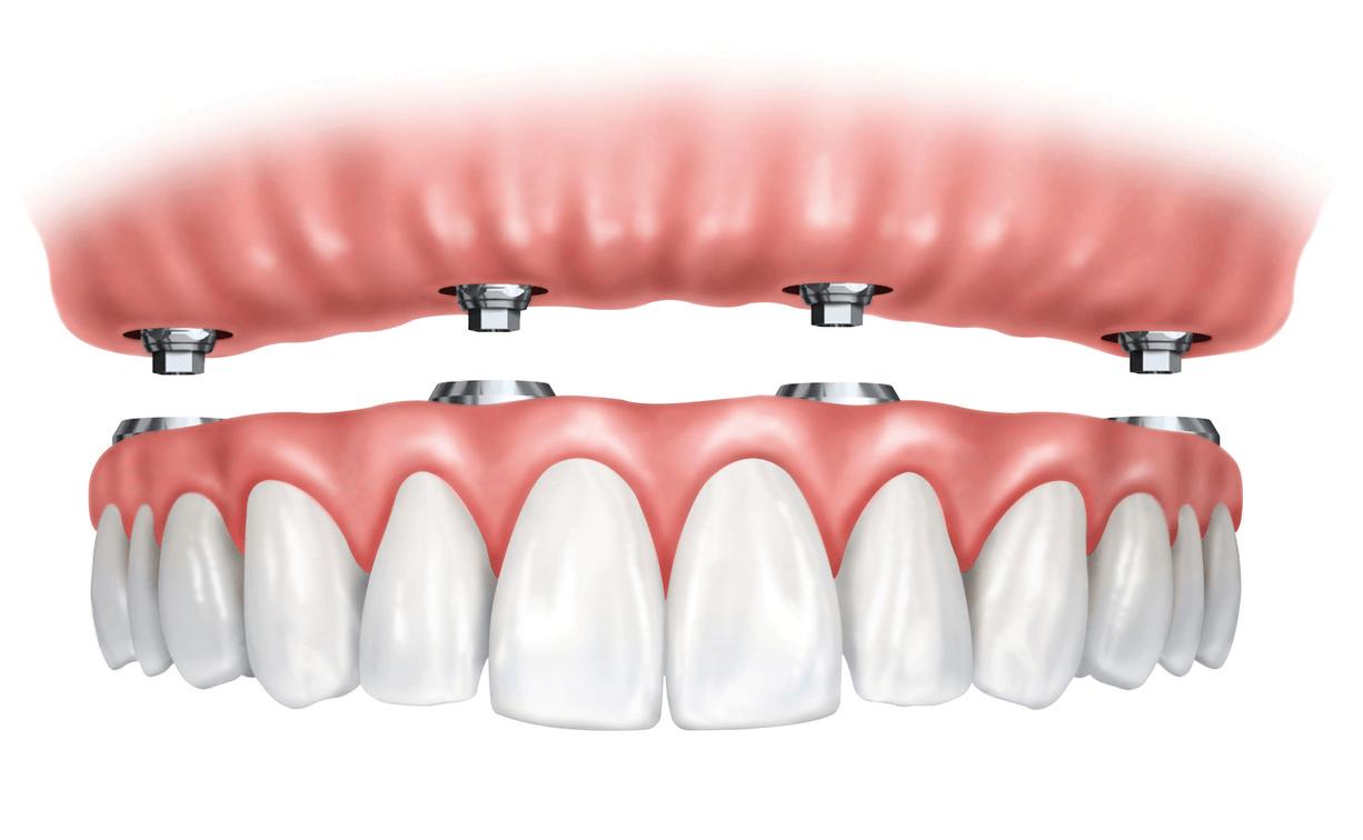 Clínica dental -implantes dentales