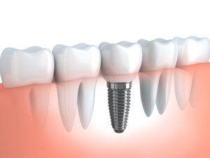 Clínica dental Badalona implantes dentales
