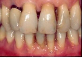 Clínica dental Badalona - Ulldent - Dentista Badalona
