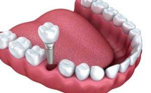 Implantes dentales Badalona