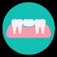 Ulldent puente implante dental Badalona